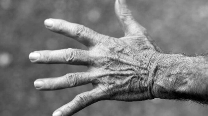 Hautalterung ist auch an den Händen sichtbar